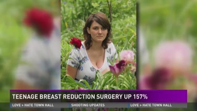 Breast reduction pictures arizona